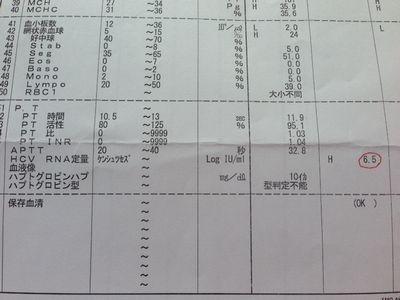 C型肝炎ウィルス量の検査結果数値